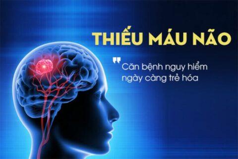 Thiếu máu não và những triệu chứng điển hình của bệnh